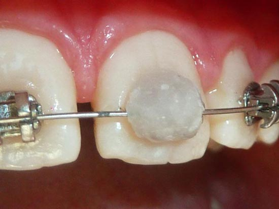 Cire appareil dentaire enfant