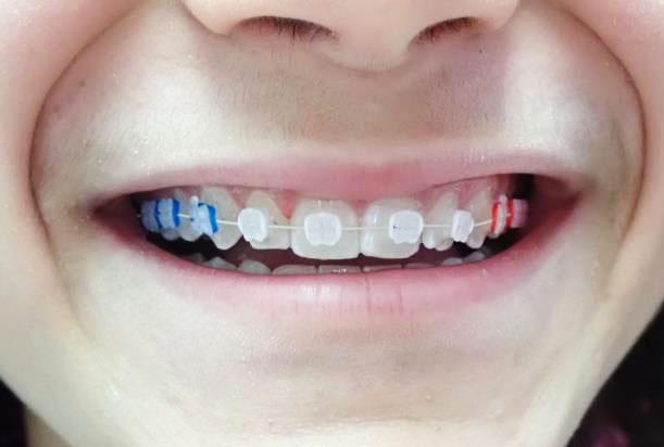 appareil dentaire personnalisé
