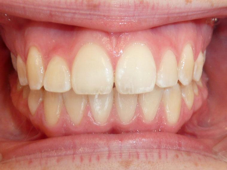 orthodontie-patient-01-apres