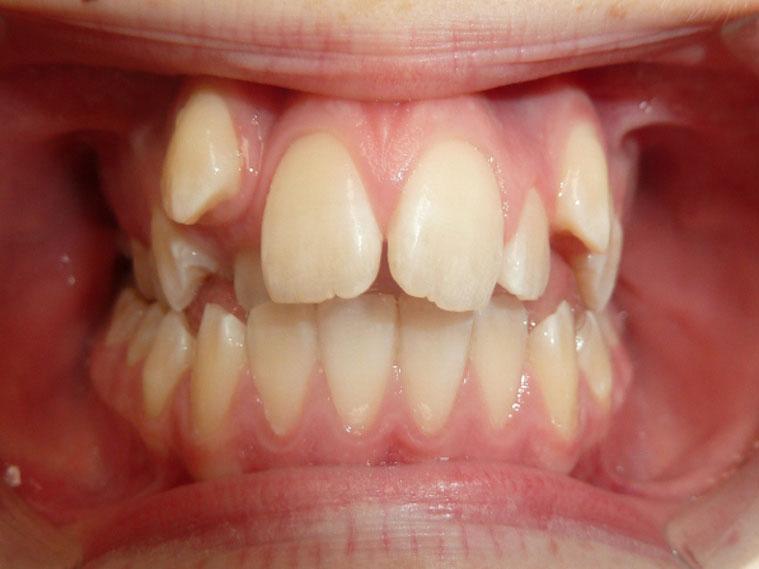 orthodontie-patient-01-avant