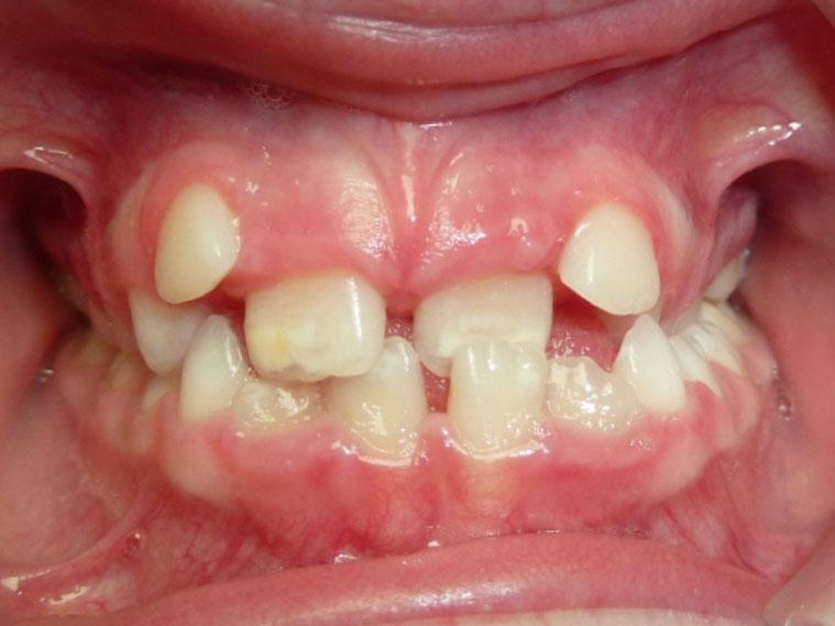 orthodontie-patient-02-avant