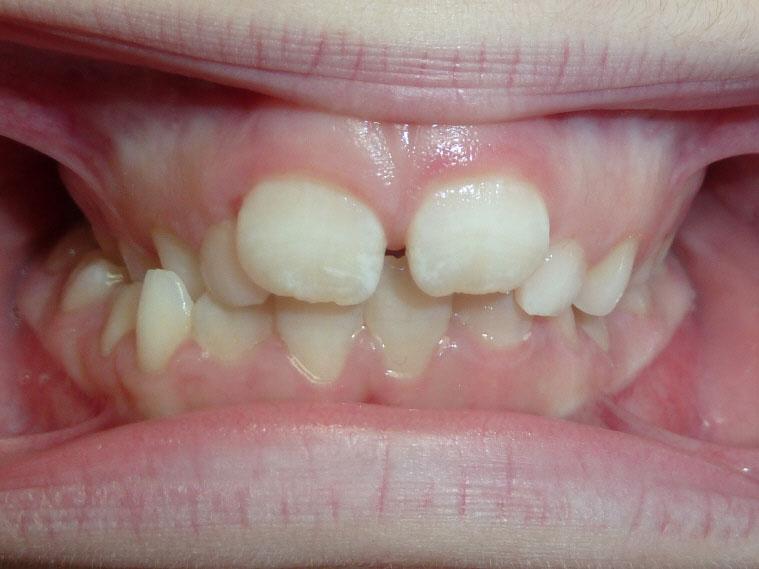 orthodontie-patient-03-avant