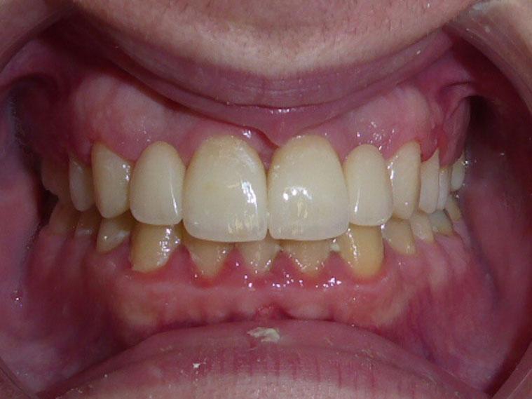 orthodontie-patient-05-apres