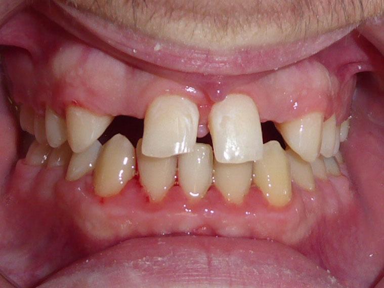 orthodontie-patient-05-avant